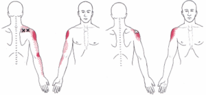 rotator pain 1