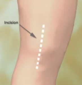 Incision Knee